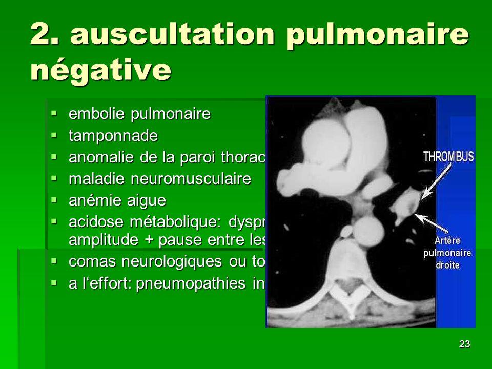 2. auscultation pulmonaire négative