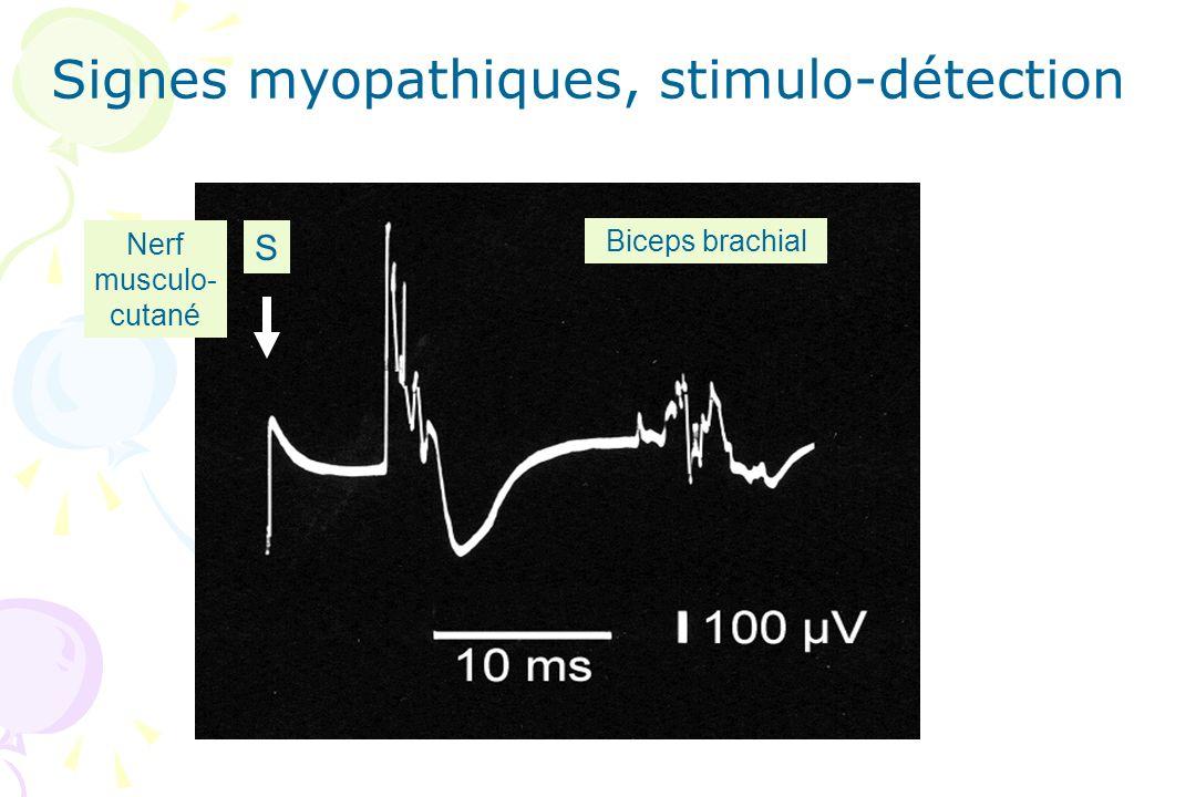 Signes myopathiques, stimulo-détection