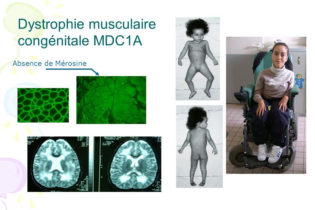 Dystrophie musculaire congénitale MDC1A