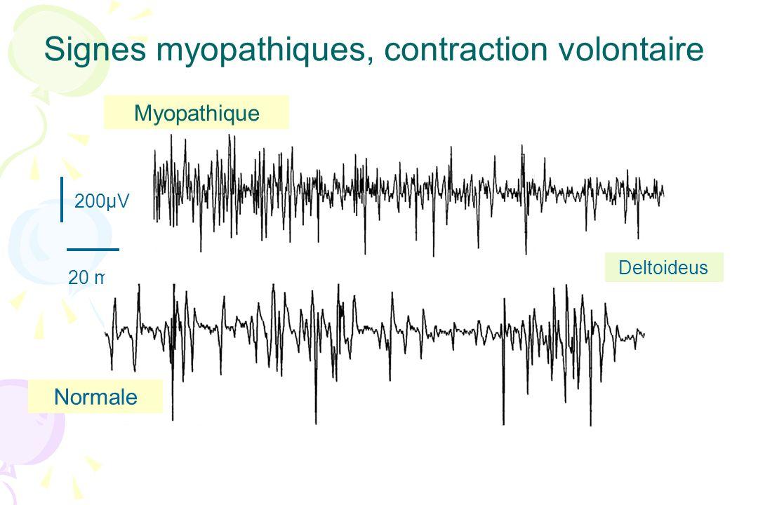Signes myopathiques, contraction volontaire