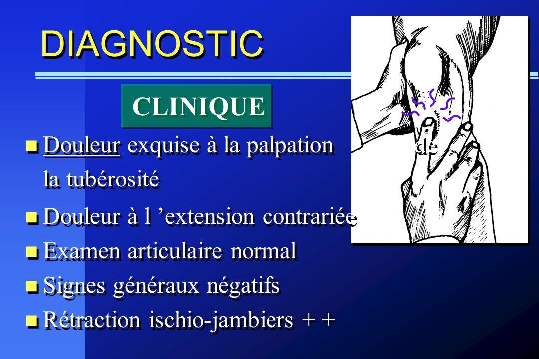 DIAGNOSTIC CLINIQUE Douleur exquise à la palpation de la tubérosité