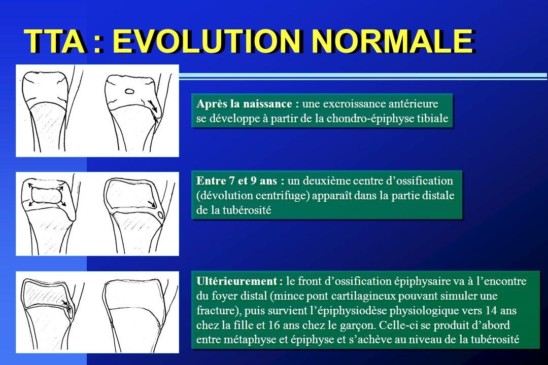 TTA : EVOLUTION NORMALE