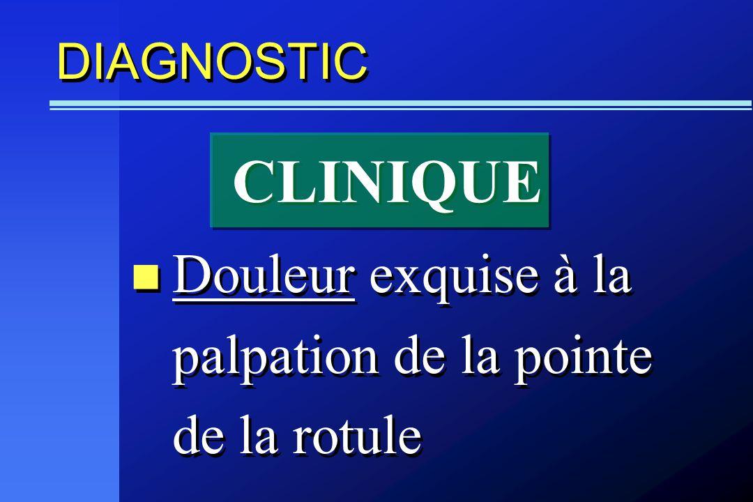 CLINIQUE Douleur exquise à la palpation de la pointe de la rotule