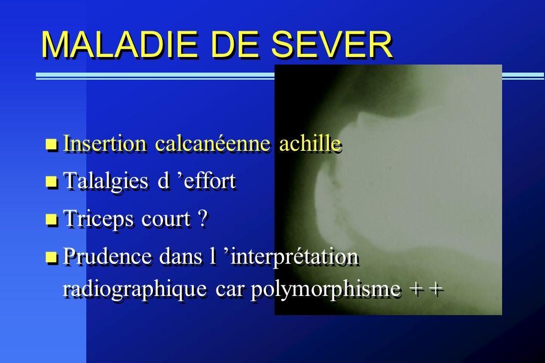 MALADIE DE SEVER Insertion calcanéenne achille Talalgies d 'effort