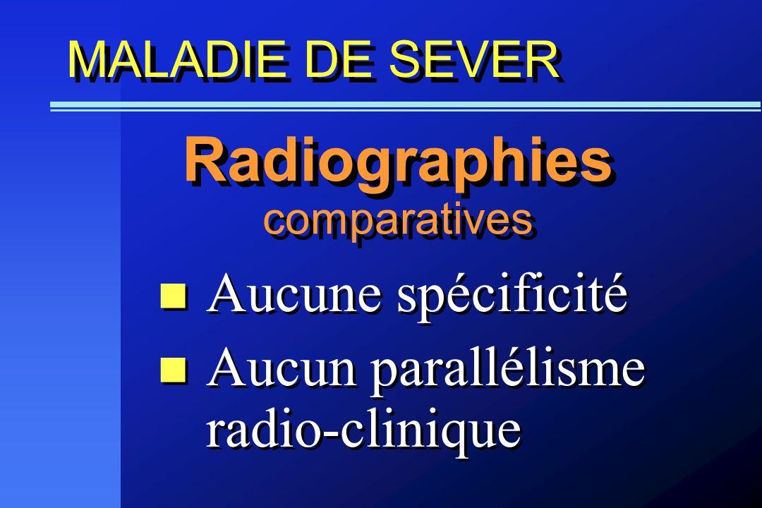 Radiographies Aucune spécificité Aucun parallélisme radio-clinique