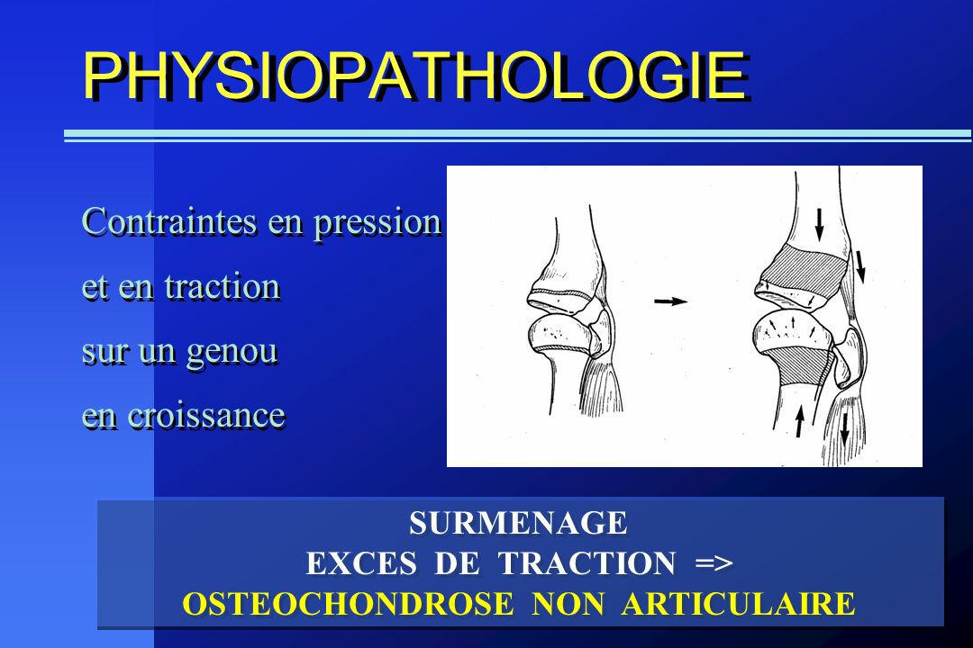 EXCES DE TRACTION => OSTEOCHONDROSE NON ARTICULAIRE