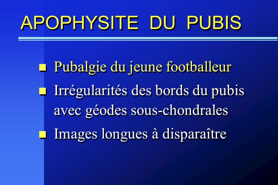 APOPHYSITE DU PUBIS Pubalgie du jeune footballeur