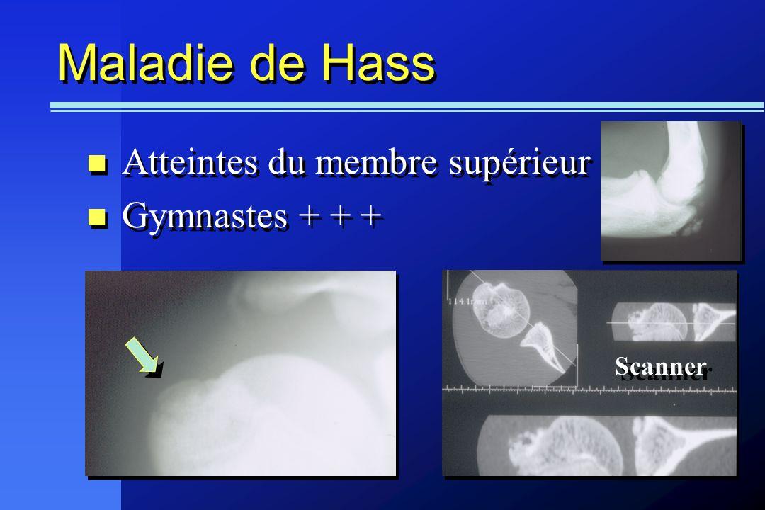 Maladie de Hass Atteintes du membre supérieur Gymnastes + + + Scanner