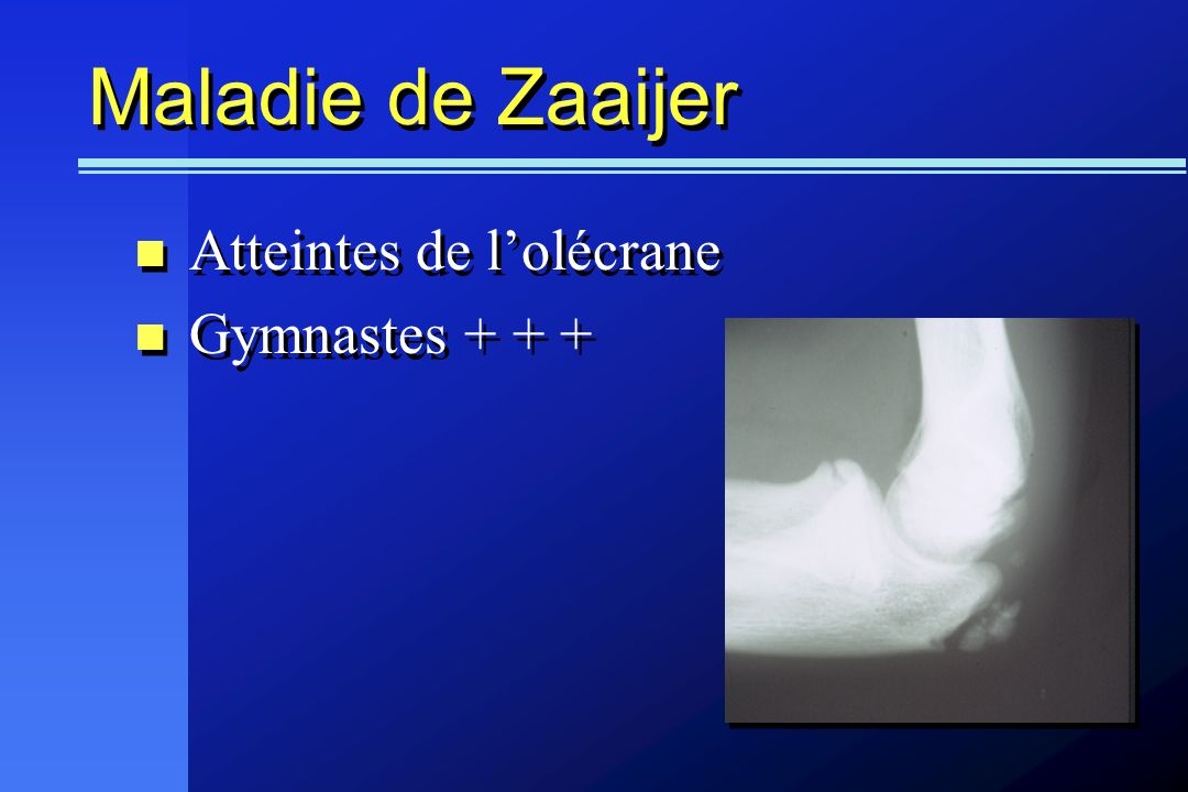 Maladie de Zaaijer Atteintes de l'olécrane Gymnastes + + +