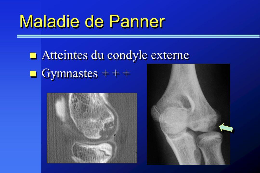 Maladie de Panner Atteintes du condyle externe Gymnastes + + +