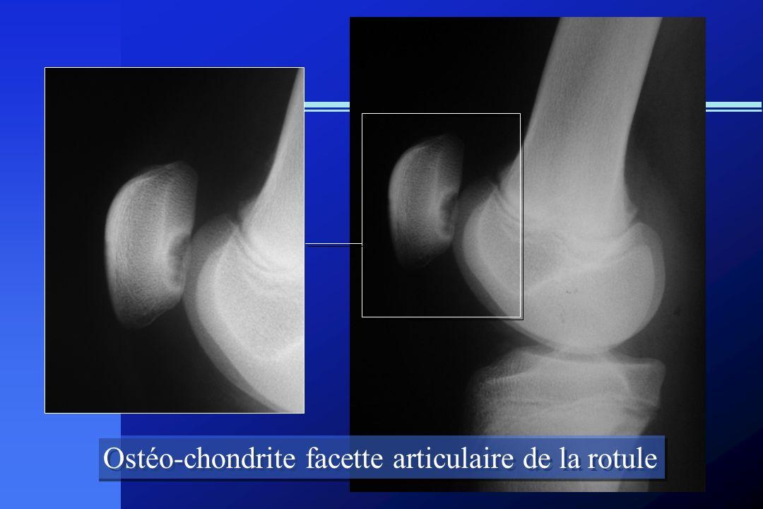 Ostéo-chondrite facette articulaire de la rotule