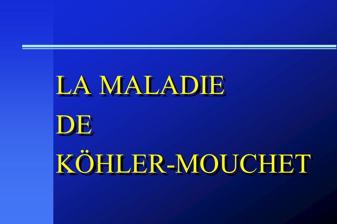 LA MALADIE DE KÖHLER-MOUCHET