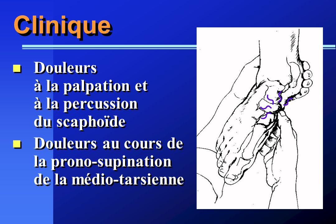 Clinique Douleurs à la palpation et à la percussion du scaphoïde