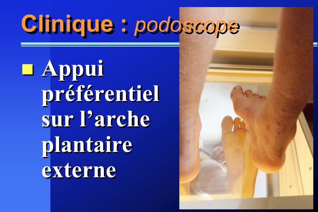 Clinique : podoscope Appui préférentiel sur l'arche plantaire externe
