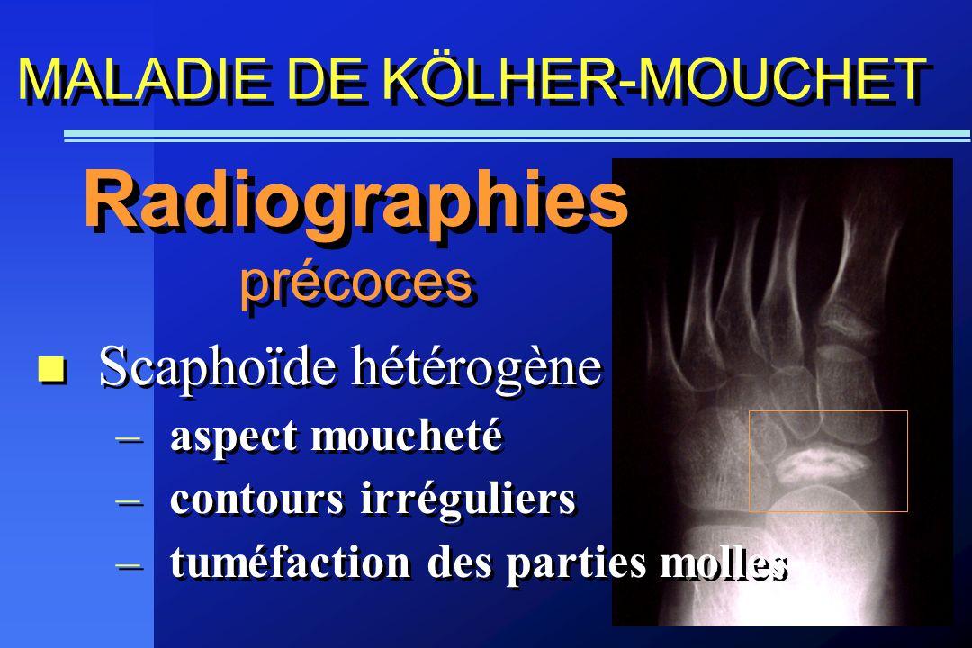 MALADIE DE KÖLHER-MOUCHET