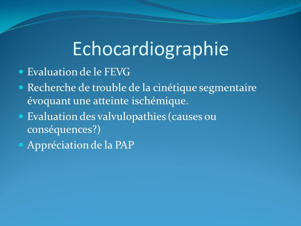 Echocardiographie Evaluation de le FEVG
