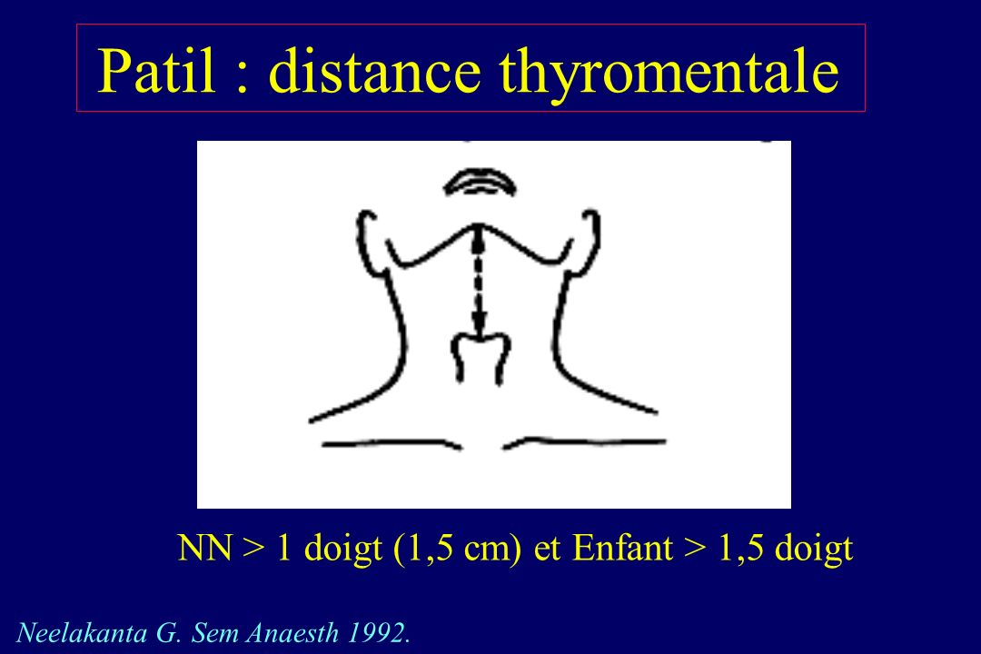 Patil : distance thyromentale