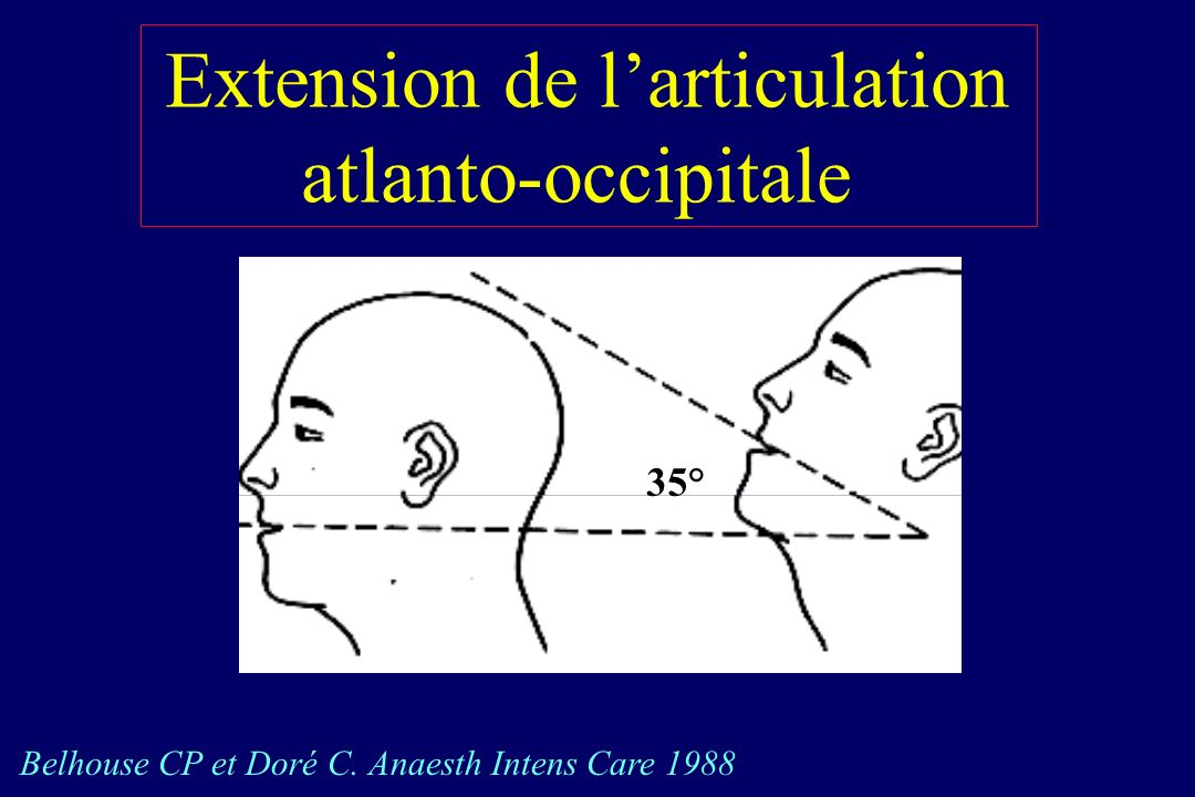 Extension de l'articulation atlanto-occipitale