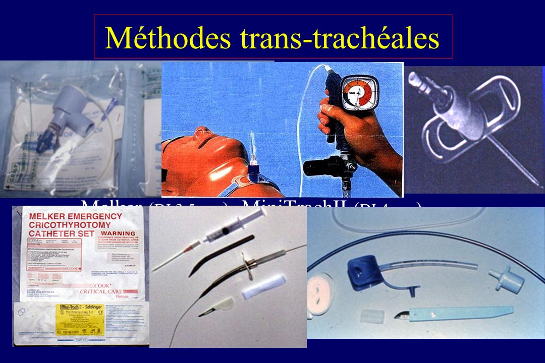 Méthodes trans-trachéales