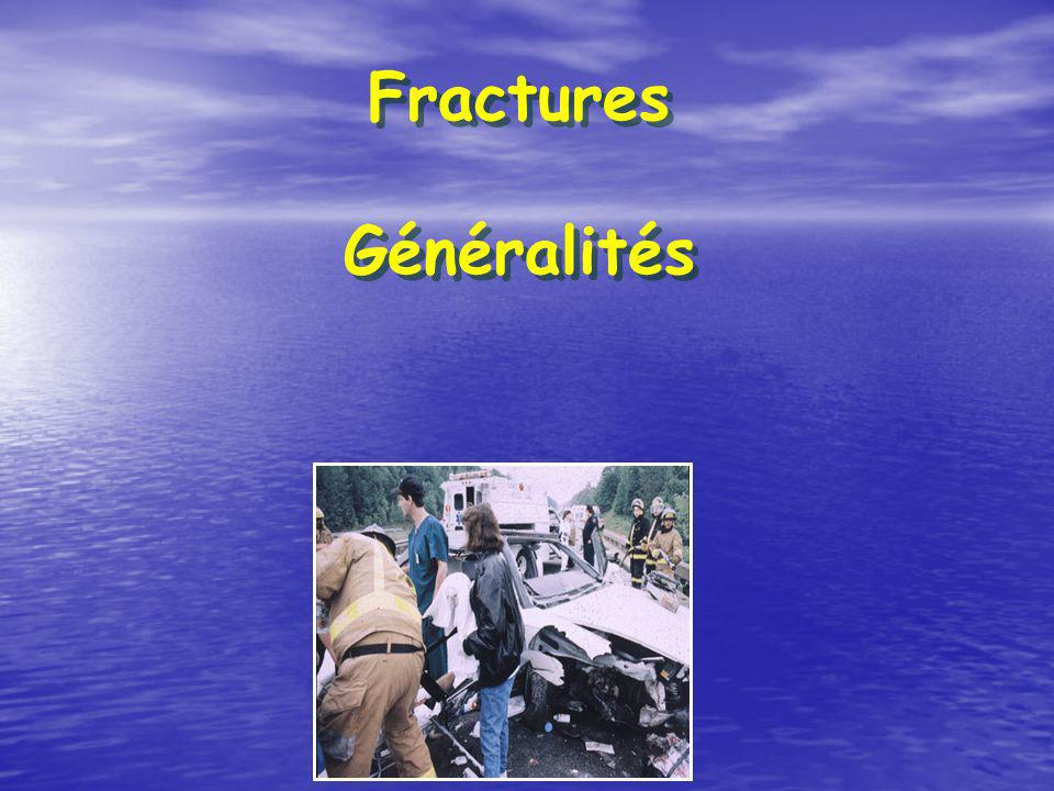 Fractures Généralités