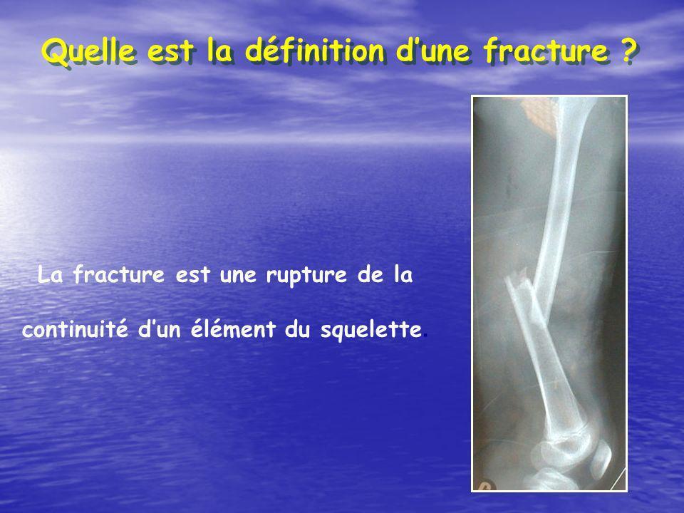 Quelle est la définition d'une fracture