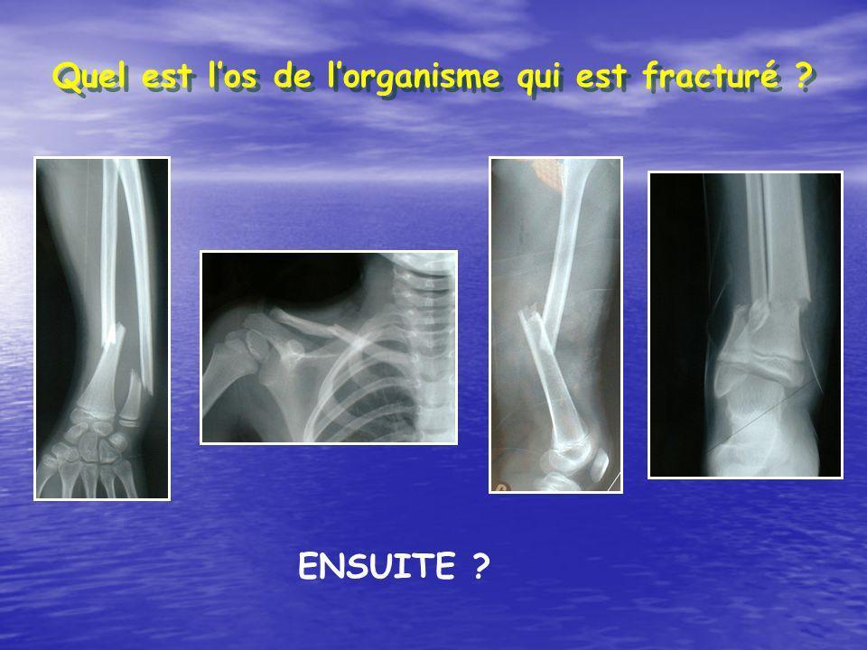 Quel est l'os de l'organisme qui est fracturé