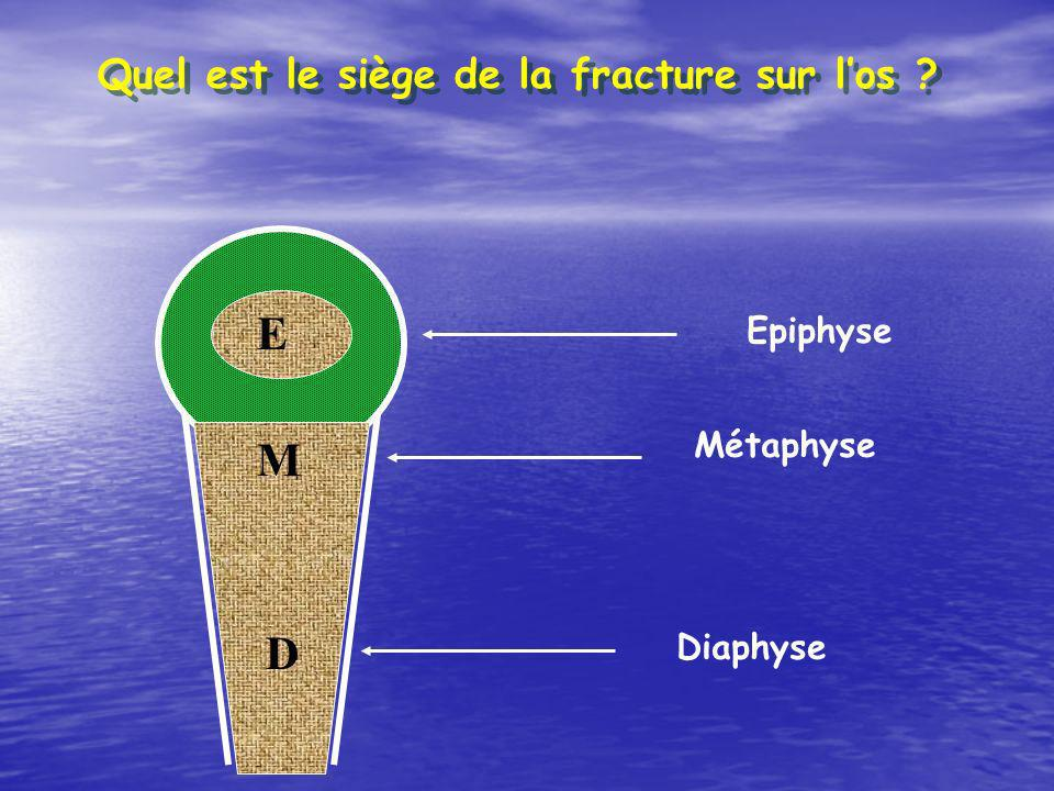 E M D Quel est le siège de la fracture sur l'os Epiphyse Métaphyse