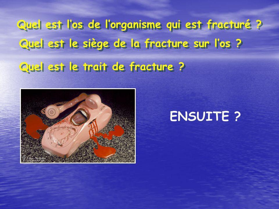 ENSUITE Quel est l'os de l'organisme qui est fracturé