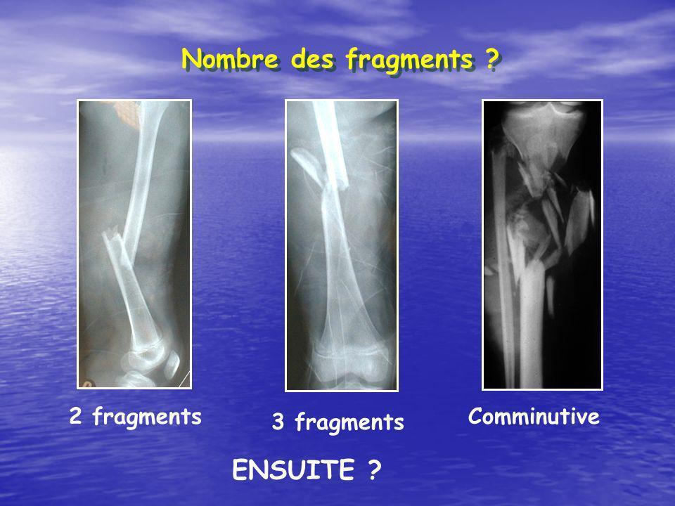 Nombre des fragments 2 fragments Comminutive 3 fragments ENSUITE