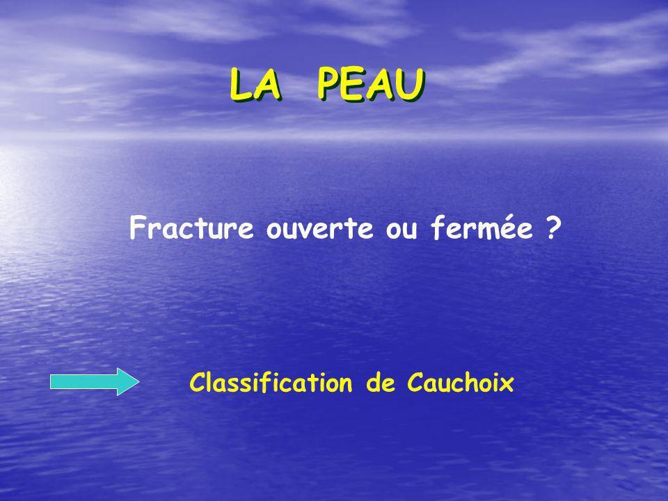 LA PEAU Fracture ouverte ou fermée Classification de Cauchoix