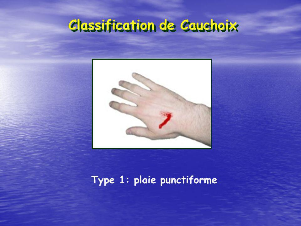 Classification de Cauchoix