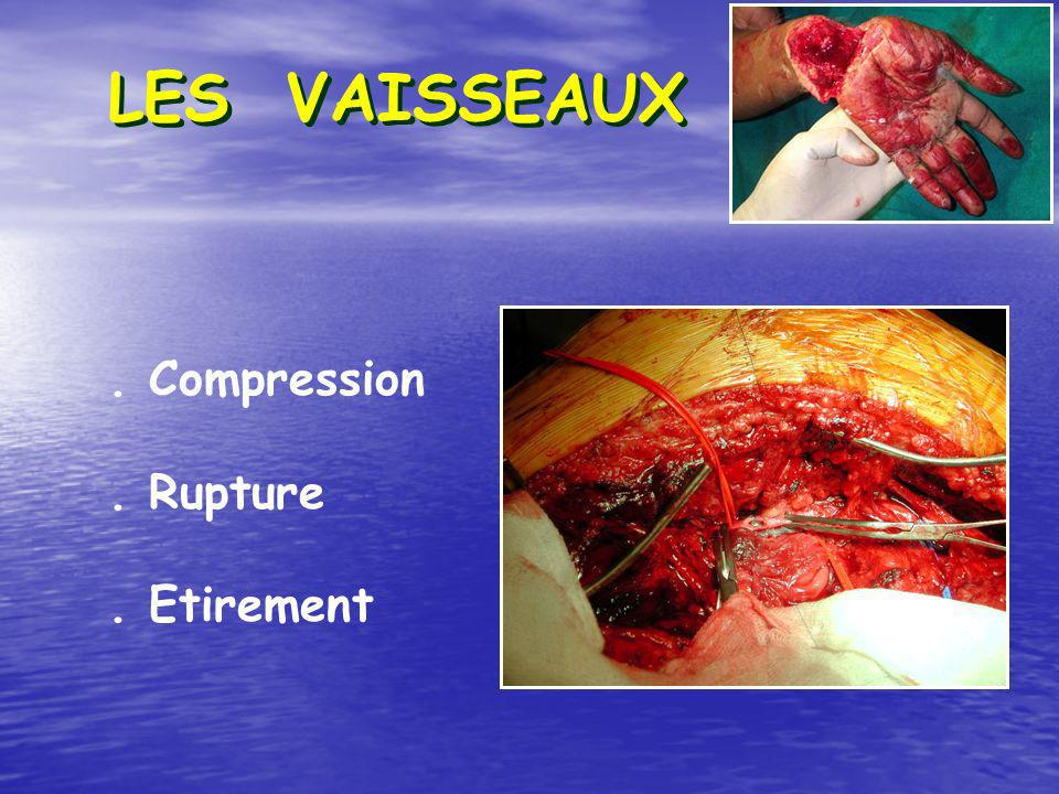 LES VAISSEAUX . Compression . Rupture . Etirement