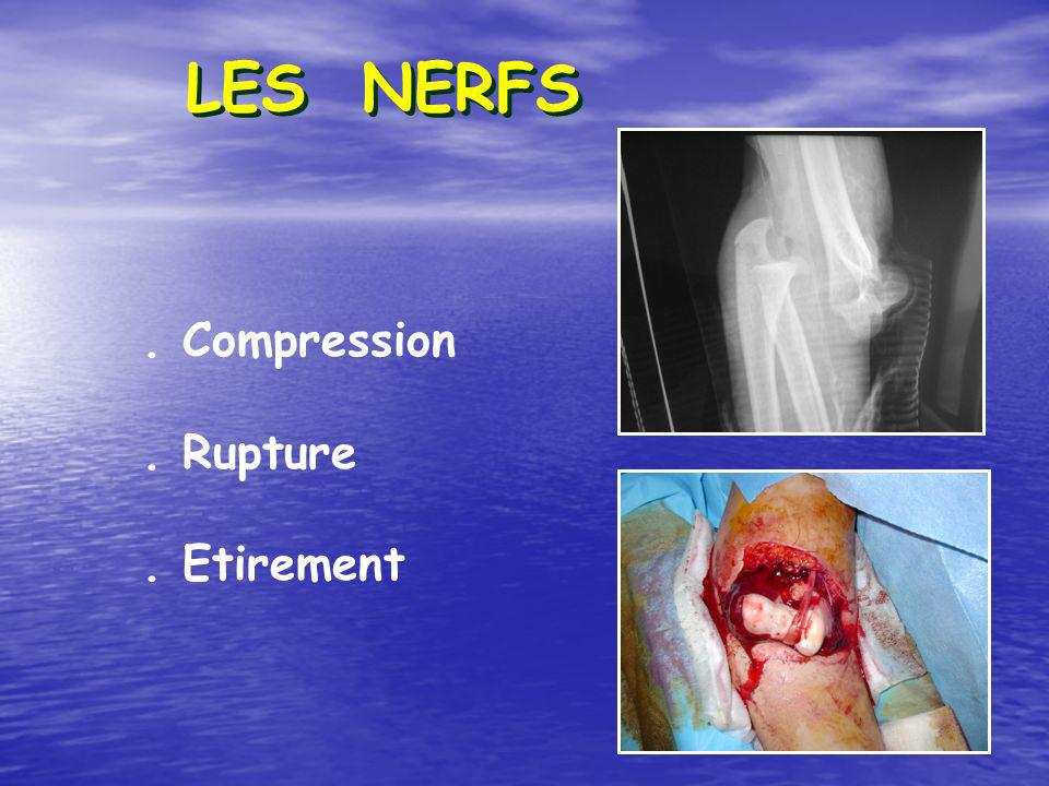 LES NERFS . Compression . Rupture . Etirement