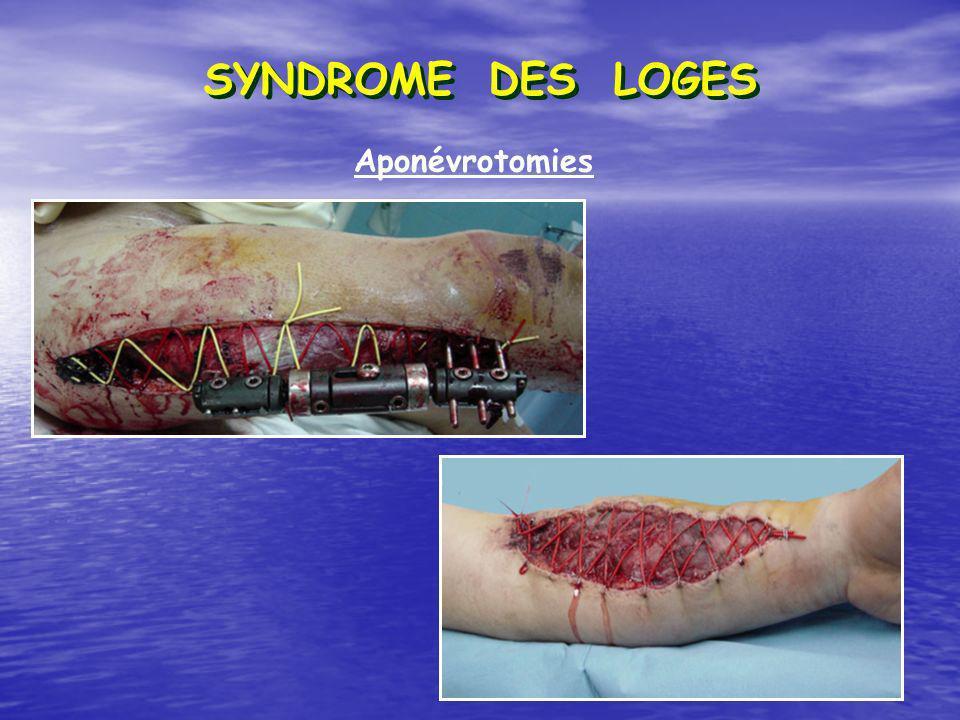 SYNDROME DES LOGES Aponévrotomies