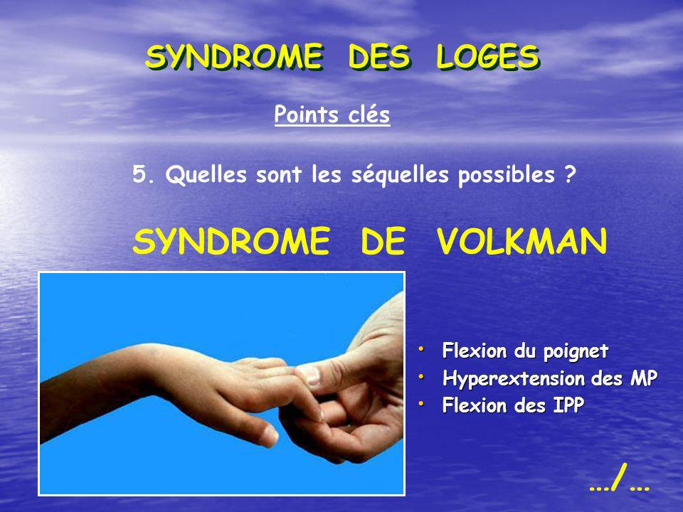 SYNDROME DE VOLKMAN …/… SYNDROME DES LOGES Points clés