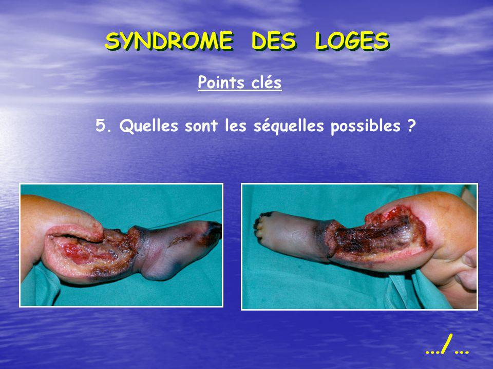 …/… SYNDROME DES LOGES Points clés