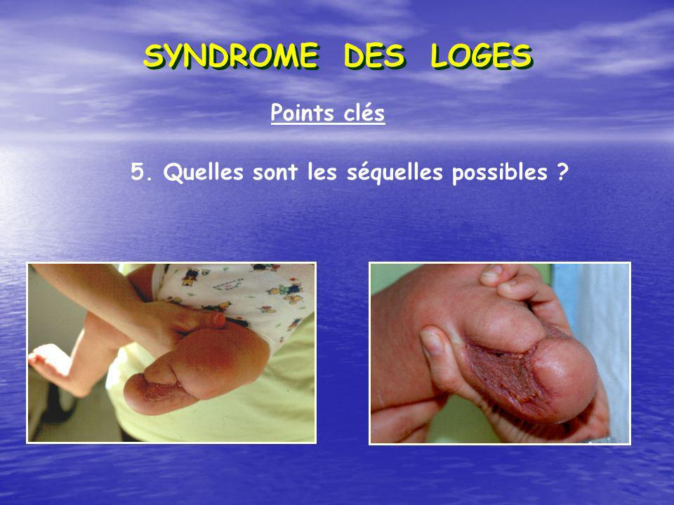 SYNDROME DES LOGES Points clés