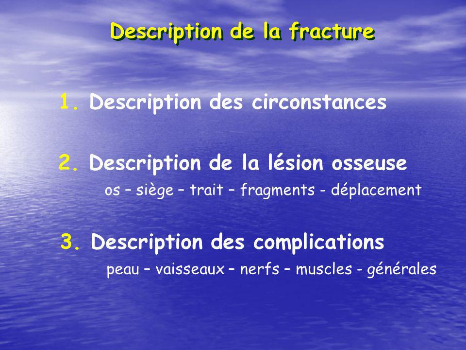 Description de la fracture