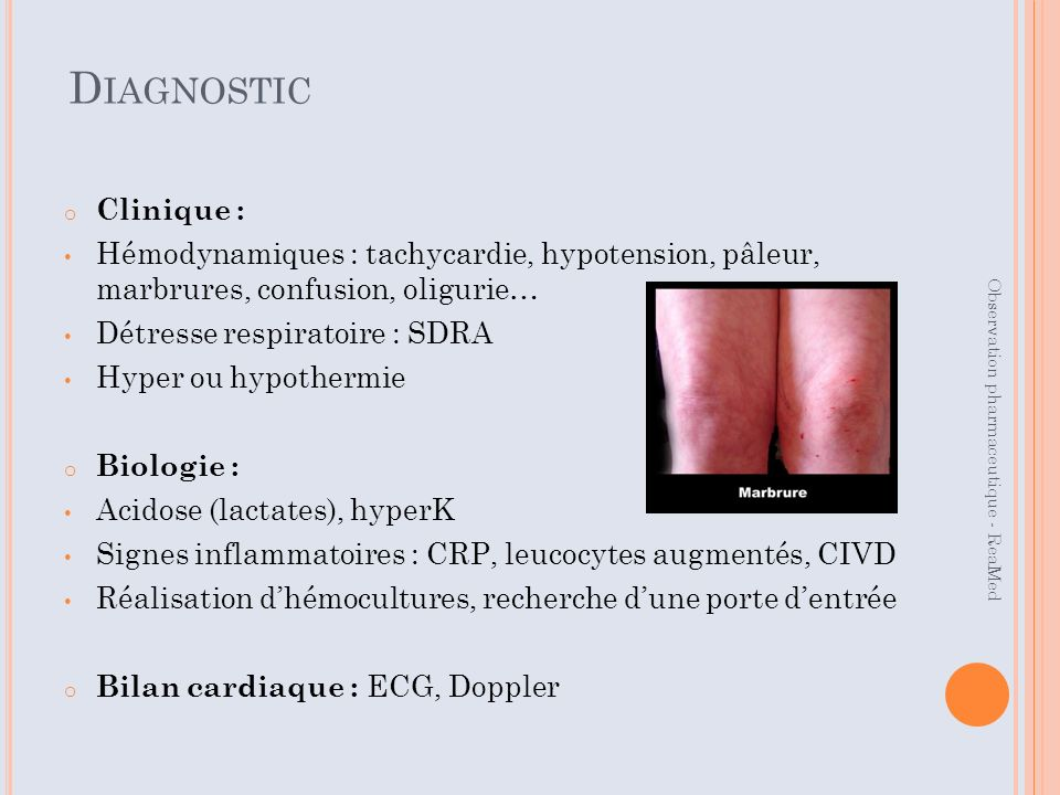 Diagnostic Clinique : Hémodynamiques : tachycardie, hypotension, pâleur, marbrures, confusion, oligurie…