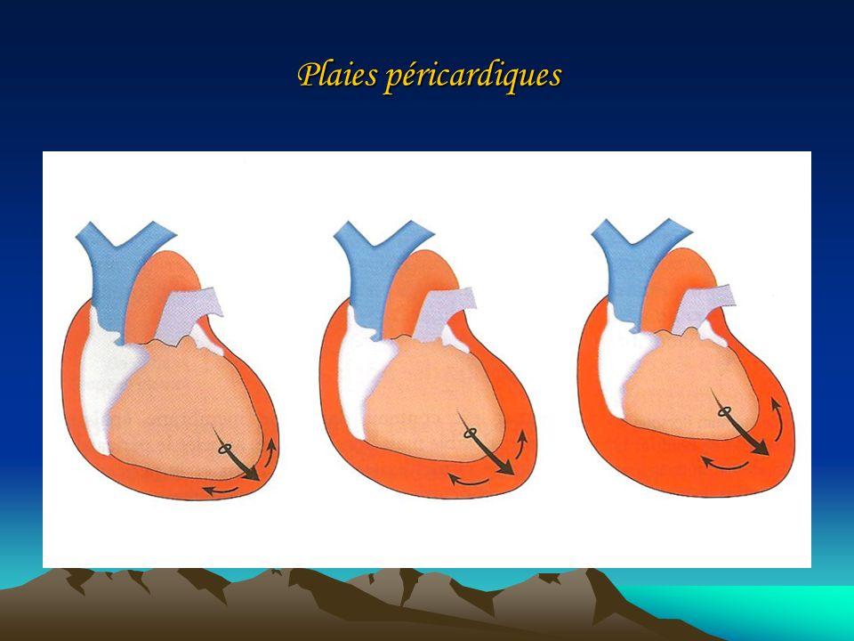 Plaies péricardiques