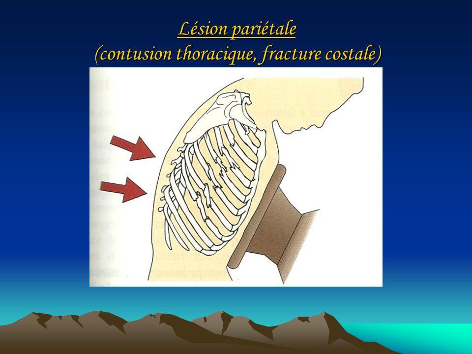 Lésion pariétale (contusion thoracique, fracture costale)