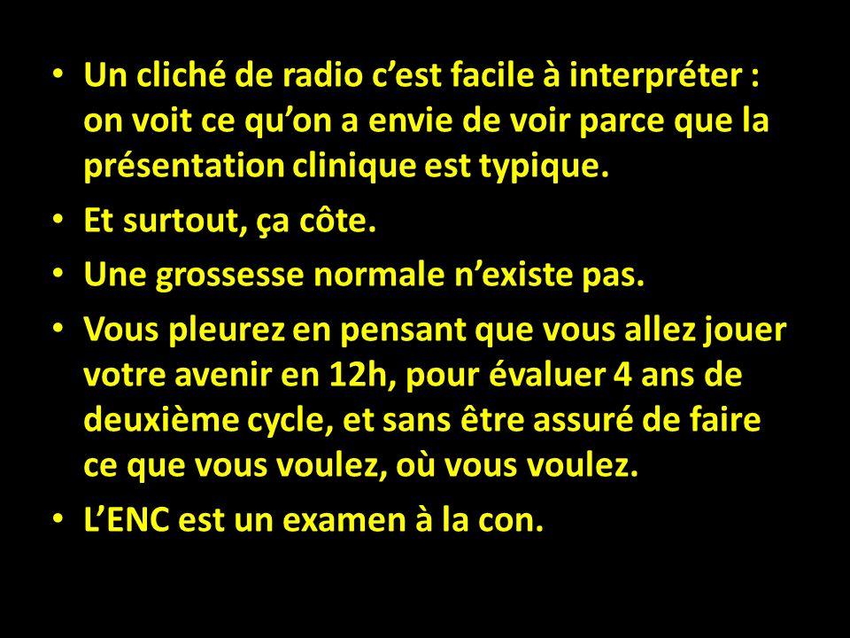 Un cliché de radio c'est facile à interpréter : on voit ce qu'on a envie de voir parce que la présentation clinique est typique.