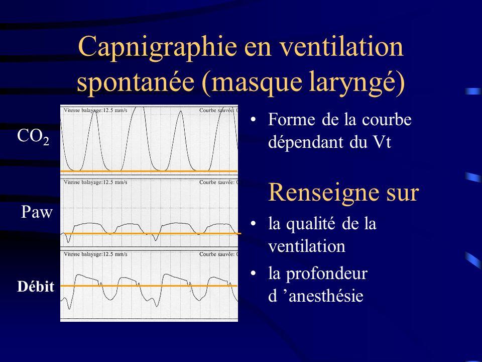 Capnigraphie en ventilation spontanée (masque laryngé)