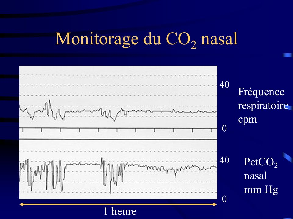 Monitorage du CO2 nasal Fréquence respiratoire cpm PetCO2 nasal mm Hg