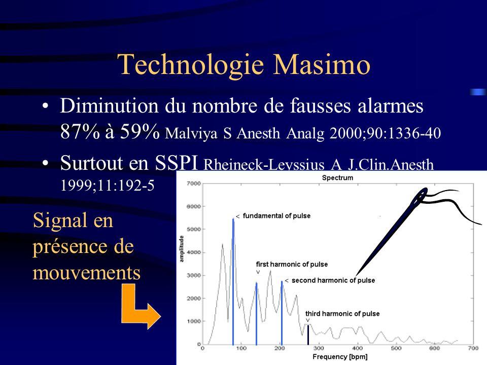 Technologie Masimo Diminution du nombre de fausses alarmes 87% à 59% Malviya S Anesth Analg 2000;90:1336-40.