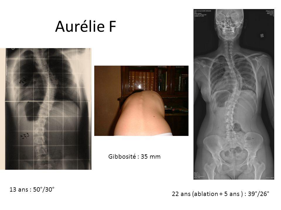 Aurélie Frizot Gibbosité : 35 mm 13 ans : 50°/30°