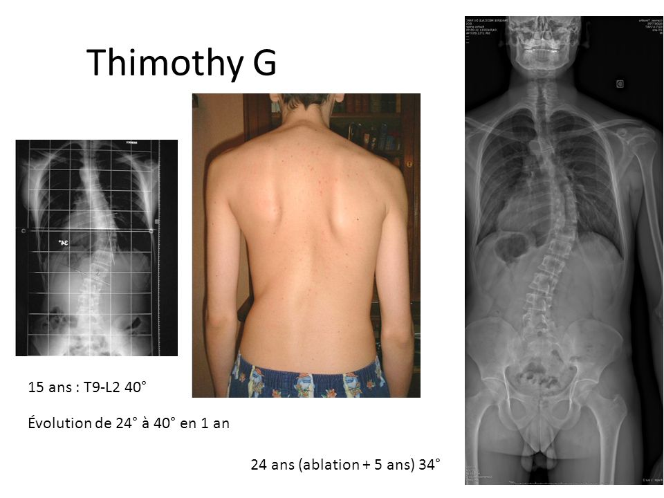 Thimothy Garnier 15 ans : T9-L2 40° Évolution de 24° à 40° en 1 an