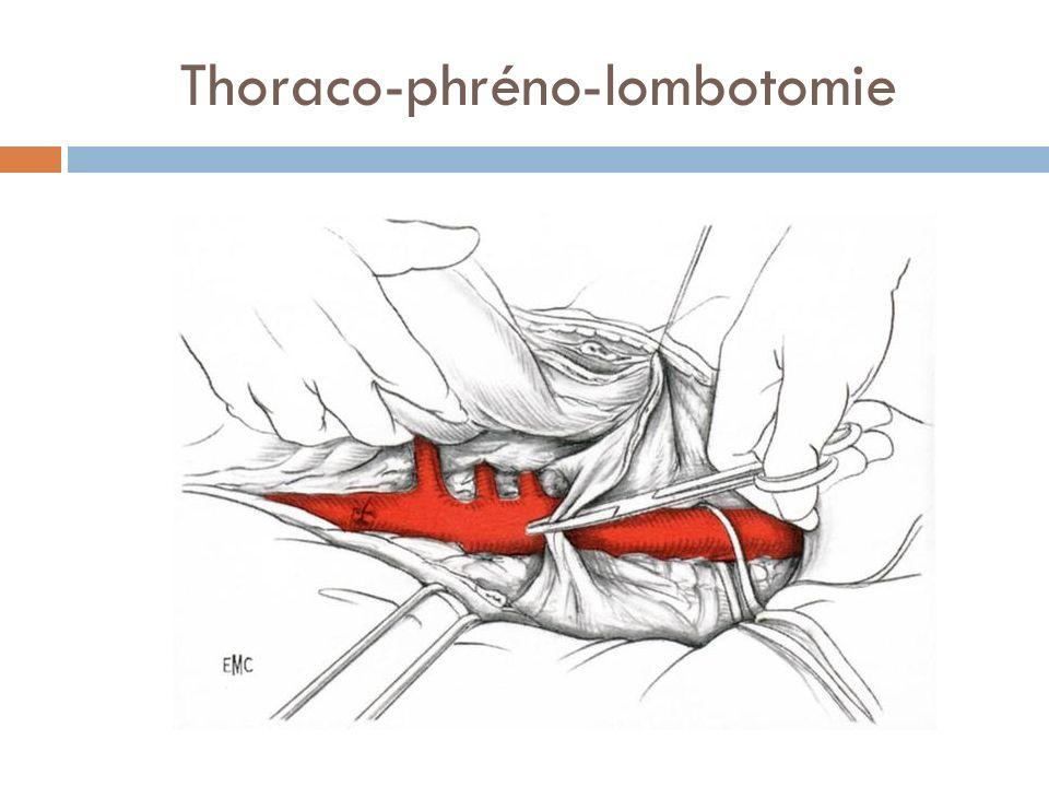 Thoraco-phréno-lombotomie