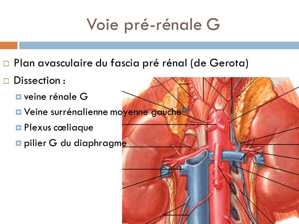 Voie pré-rénale G Plan avasculaire du fascia pré rénal (de Gerota)