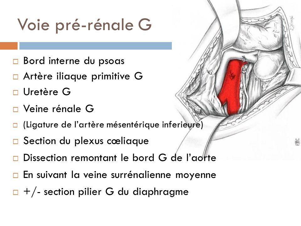 Voie pré-rénale G Bord interne du psoas Artère iliaque primitive G
